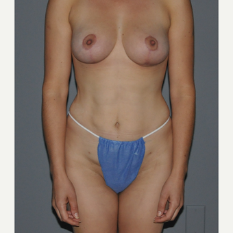 35-44 year old woman treated with Breast Lift after 3412888
