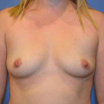 18-24 year old woman treated with Breast Augmentation before 3076765