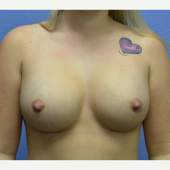 18-24 year old woman treated with Breast Augmentation after 3076765