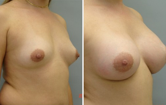 Breast Augmentation before 1357172