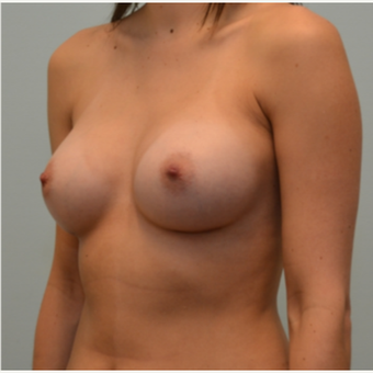 36 year old patient with Natrelle Gel Shaped 410 Implants 1868272