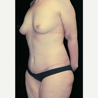 Body Contouring after Sleeve Gastrectomy after 3332785