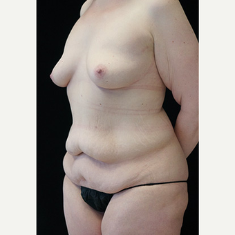 Body Contouring after Sleeve Gastrectomy before 3332785