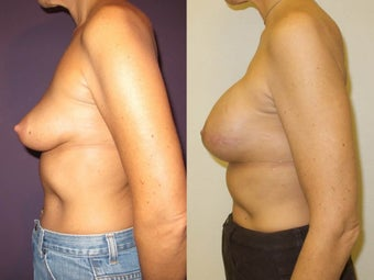 Breast Reconstruction 1032018