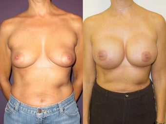 Breast Reconstruction before 1032018