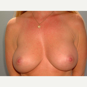 40 y/o Transaxillary Submuscular Breast Augmentation after 3066430