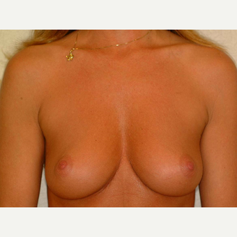 40 y/o Transaxillary Submuscular Breast Augmentation before 3066430