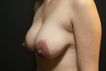 Breast Augmentation - Mastopexy before 2014339
