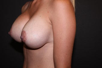 Breast Augmentation - Mastopexy after 2014339