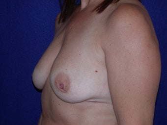 50 Year Old Female, Breast Implant Removal, No Breast Lift 1166110