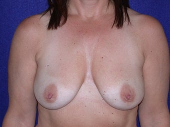 50 Year Old Female, Breast Implant Removal, No Breast Lift after 1166110