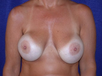 50 Year Old Female, Breast Implant Removal, No Breast Lift before 1166110