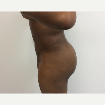 25-34 year old woman treated with Fat Transfer after 3590483