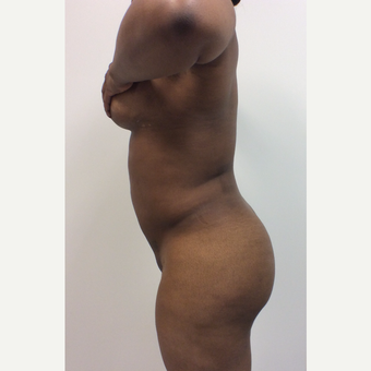 25-34 year old woman treated with Fat Transfer before 3590483