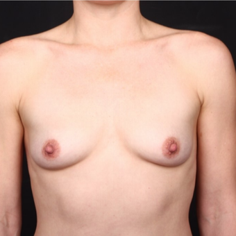 35-44 year old woman treated with Breast Augmentation before 3034743