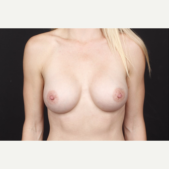 35-44 year old woman treated with Breast Augmentation after 3034743