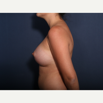 25-34 year old woman treated with Breast Augmentation (view 2 of 2) after 3333168