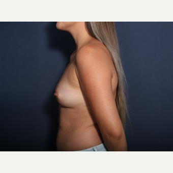 25-34 year old woman treated with Breast Augmentation (view 2 of 2) before 3333168