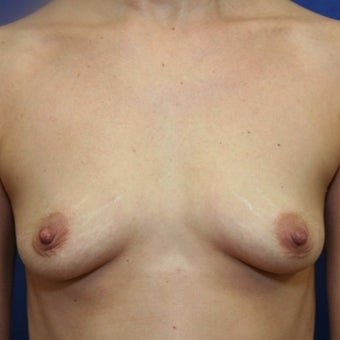 39 year old woman treated with bilateral breast augmentation before 2337204