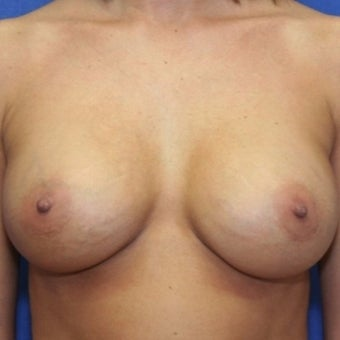 39 year old woman treated with bilateral breast augmentation after 2337204