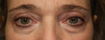Upper and Lower Eyelids.  61 year-old patient before 1332685