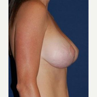 35-44 year old woman treated with Breast Lift with Implants after 3370708