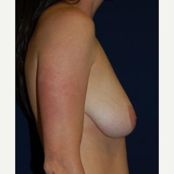 35-44 year old woman treated with Breast Lift with Implants before 3370708