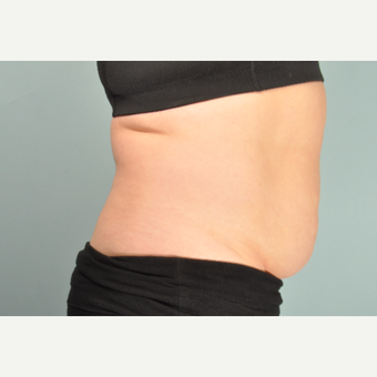 25-34 year old woman treated with SculpSure after 2877981