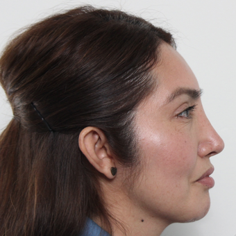 45-54 year old woman treated with Rhinoplasty after 3442527