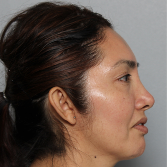 45-54 year old woman treated with Rhinoplasty before 3442527