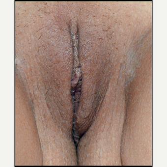 35-44 year old woman treated with Vaginal Rejuvenation after 3146941