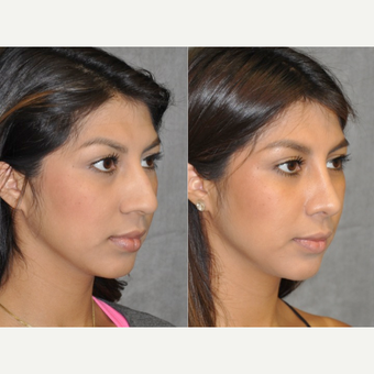 18-24 year old woman treated with Rhinoplasty before 3181390