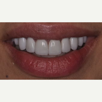 26 year old woman treated with Porcelain Veneers after 3537732