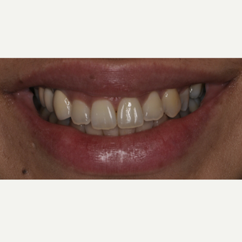 26 year old woman treated with Porcelain Veneers before 3537732