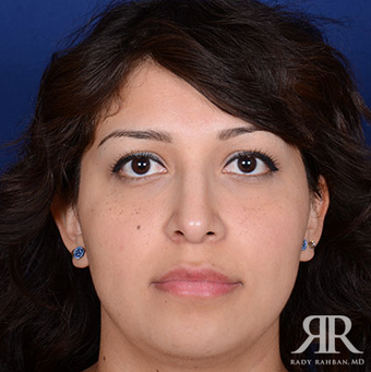 Rhinoplasty after 1357426