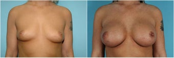 Breast augmentation before 153063