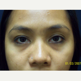 28 year old woman treated for Lower Eyelids Hollows before 3201563