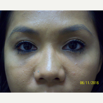 28 year old woman treated for Lower Eyelids Hollows after 3201563