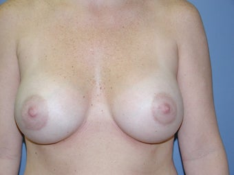 Breast Augmentation  after 512201