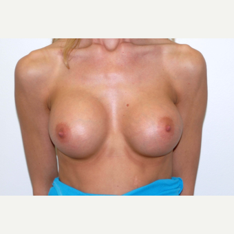 25-34 year old woman treated with Breast Augmentation after 3377414