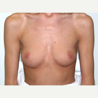 25-34 year old woman treated with Breast Augmentation before 3377414