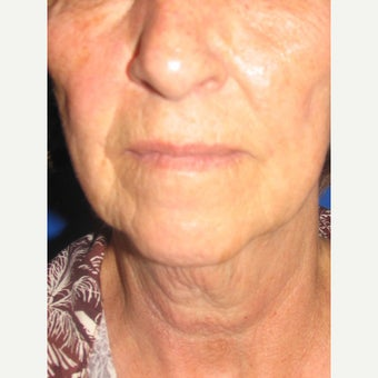75 and up year old woman treated with face lift, and fat injections 2445964