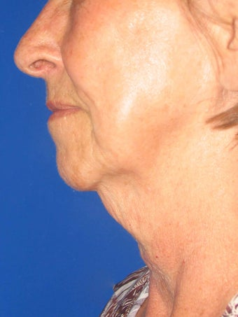 75 and up year old woman treated with face lift, and fat injections before 2445964