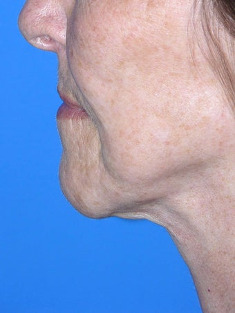 75 and up year old woman treated with face lift, and fat injections after 2445964