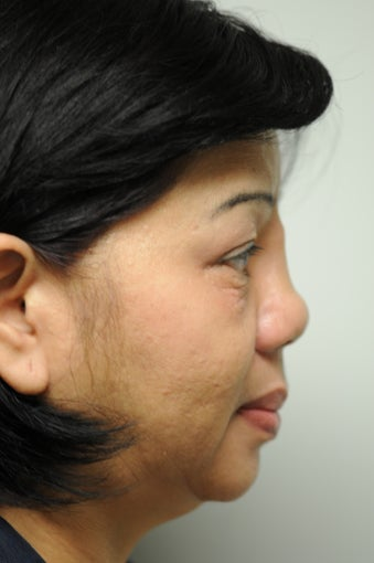 Revision Rhinoplasty after Silicone Implant before 1109659