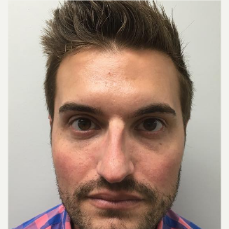25-34 year old man treated with Voluma before 3671815