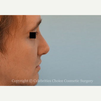 25-34 year old man treated with Rhinoplasty after 3013563