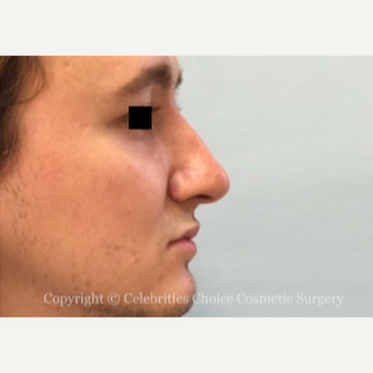 25-34 year old man treated with Rhinoplasty before 3013563