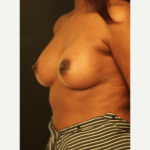 25-34 year old woman treated with Breast Augmentation after 3731776
