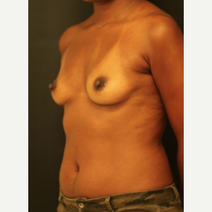 25-34 year old woman treated with Breast Augmentation before 3731776